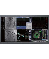 Operāciju zāles monitori Eizo